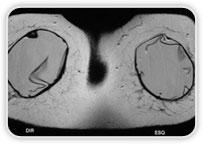 Implantes com Formato Redondo Imagens Lineares com Orientação não Radial Redução de Dobras Radiais Espessamento de Cápsula Fibrosa