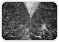 Carcinoma Ductal Invasor + Focos De Carcinoma Ductal In Situ Na Mama Esq.