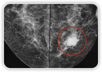 Carcinoma Ductal Invasor em Interquadrantes Mediais Mama Esquerda