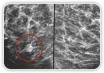 Carcinoma Ductal Invasor na Mama Dir - Boa Correlação: MMG - US - RM<