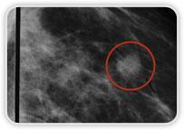 Carcinoma Ductal Invasor em Quadrante Superior Lateral na Mama Esquerda