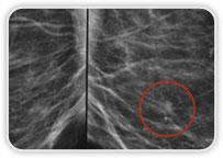Carcinoma Ductal Invasor na Mama Esquerda