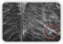 Carcinoma Ductal Invasor na Mama Esq.