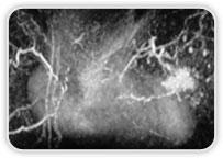 Carcinoma Ductal Invasor no Quadrante Inferior Medial da Mama Esq.
