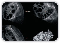 Ultrassonografia - Ginecológico