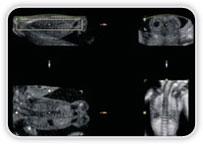 Ultrassonografia - Obstétrico