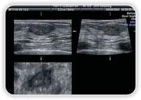 Ultrassonografia - Mama